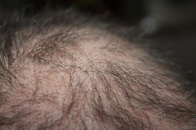 natural hair loss remedies