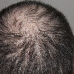 ✎ How can you Stop Hair Loss? Tips by HairSolutionBlog
