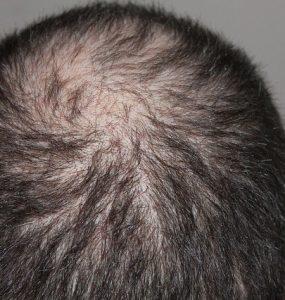 stop hair fall immediately