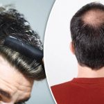 Effective Hair Loss Cure At Home For Men And Women
